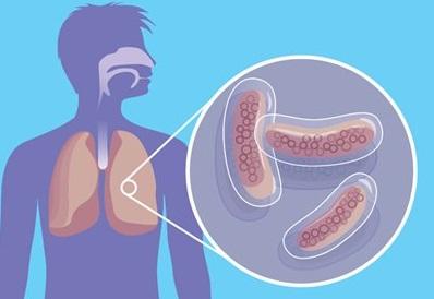 Как не заболеть туберкулезом?