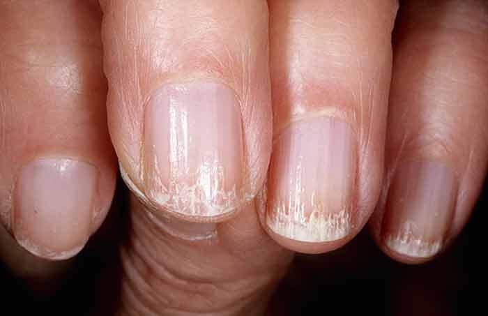 Чтобы ногти не ломались и не слоились