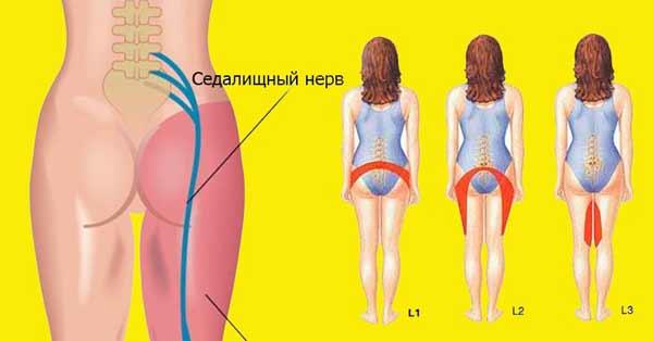 2 простых упражнения для разблокировки седалищного нерва